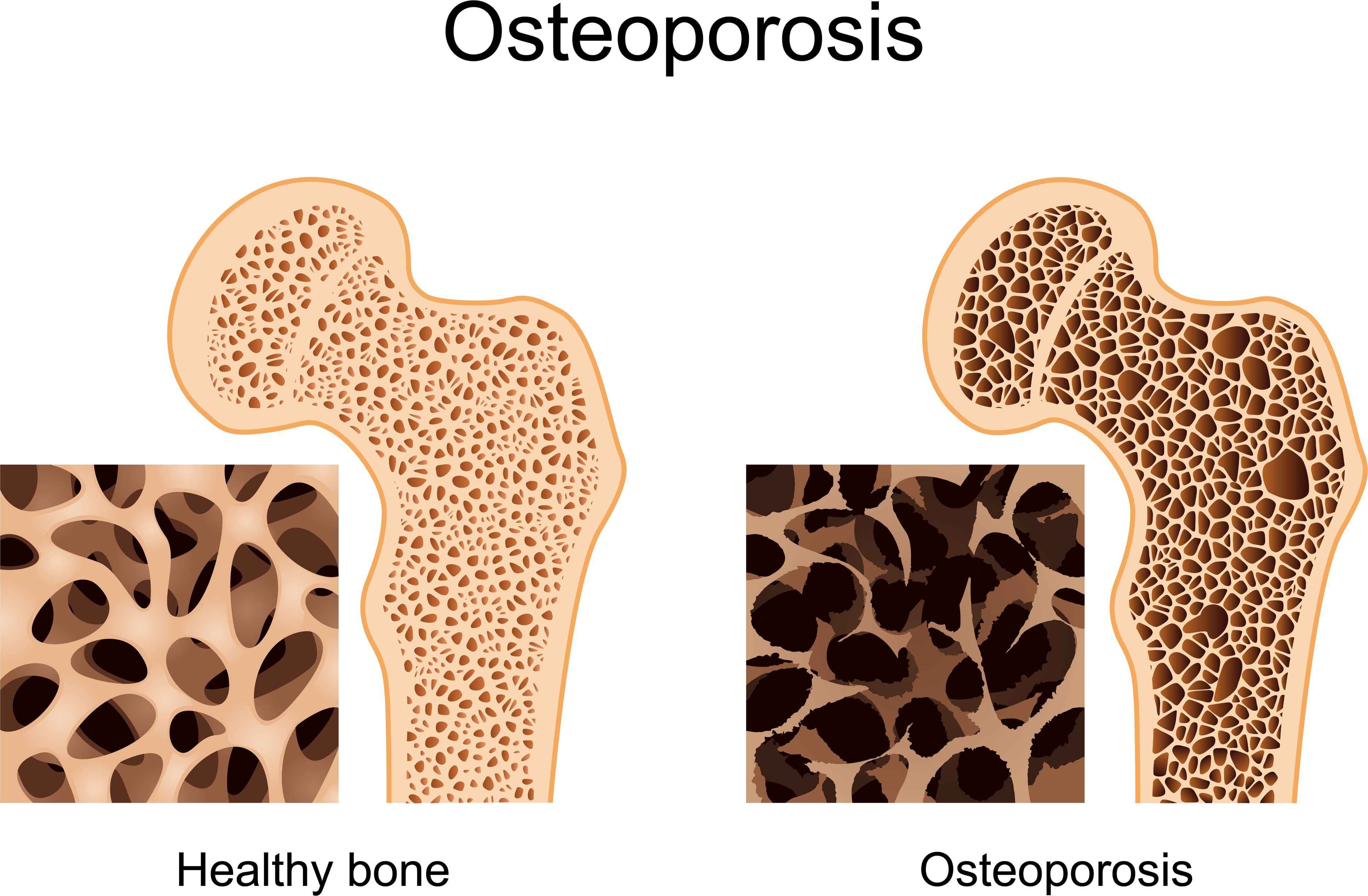 Glebe Hill Family Practice - Osteoporosis